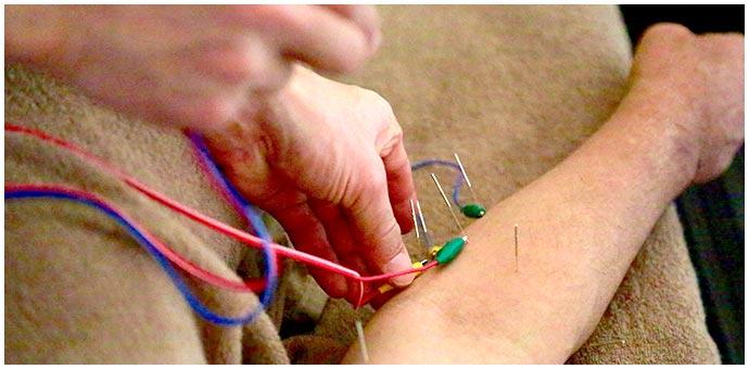 肘の痛みの治療